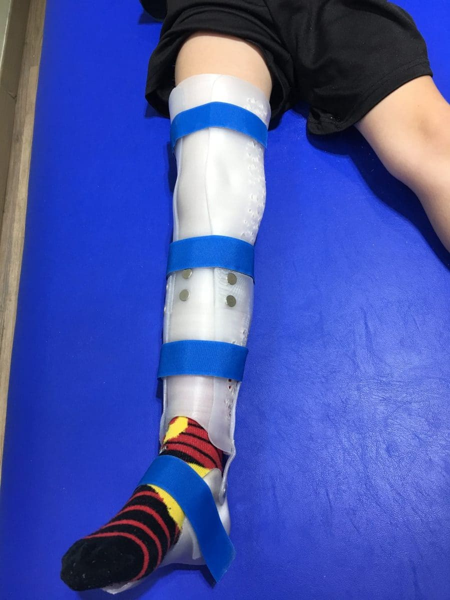 ortopedia 3d